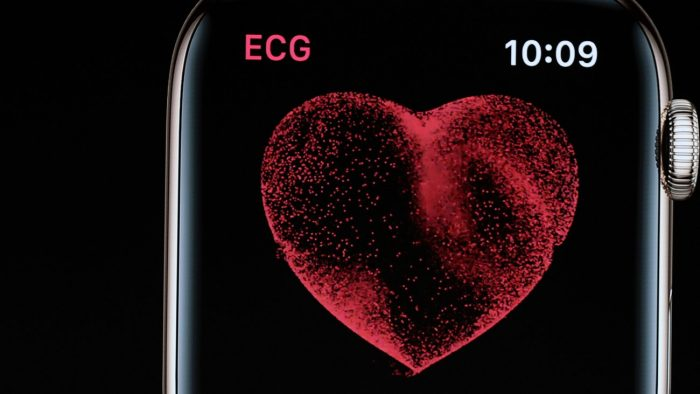 Apple Watch Monitors Irregular Heart Beats